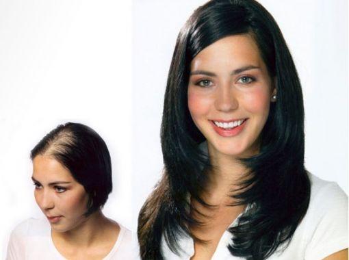 Protez Saç Sistemi